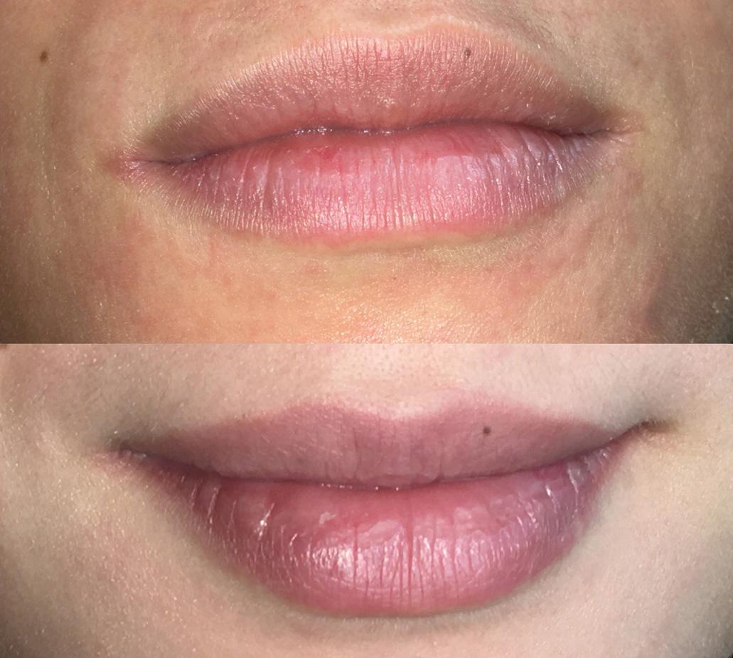 DP-Academy bootcamp baby lips basis